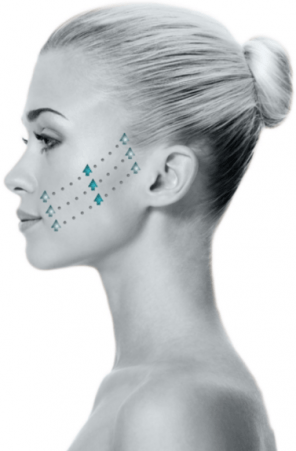 Now Offering SILHOUETTE INSTALIFT™ – The Newest Procedure to Lift Sagging Facial Skin