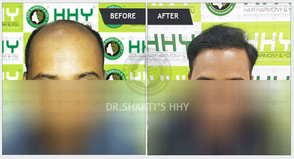 What are the causes and treatments for male pattern baldness ?