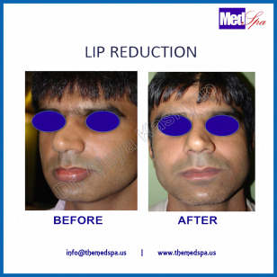 Lip reduction surgery – procedure and cost