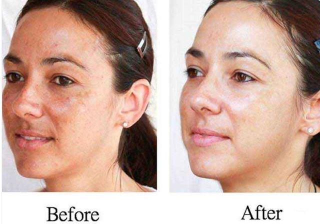 how to get lighter skin overnight
