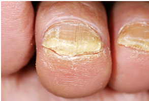 Is there A Hope to Cure Toenail Fungus?
