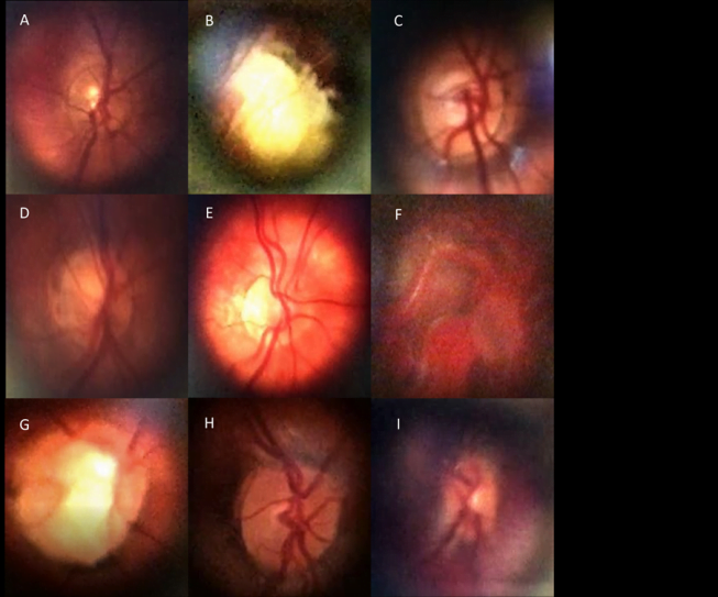 Comparison Study of Fundoscopic Exam of Pediatric Patients Using D-EYE™ Method and Conventional Indirect Ophthalmoscopic Methods