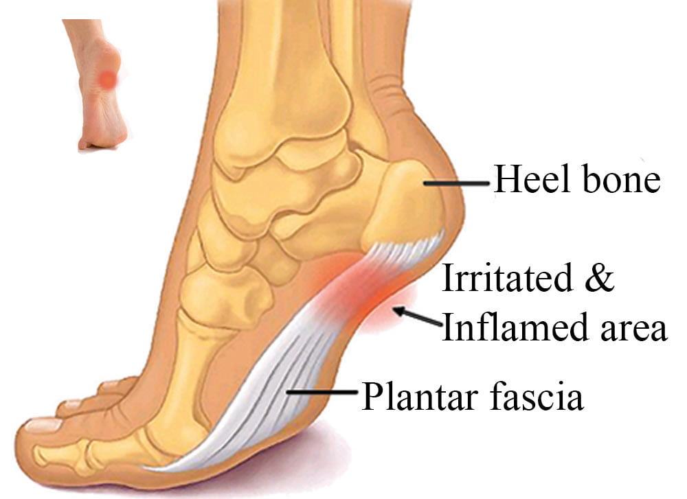 Common Foot Problems Pain – Traumatic Foot Injury
