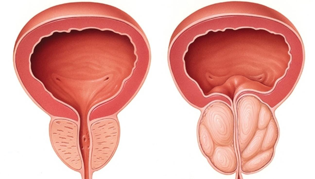A New Effective Treatment for Enlarged Prostate in South Africa