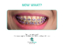StraightSmile Solutions™- Orthodontic Consulting Launches Convenient, Digital, Hands-On Orthodontic Training and Consulting