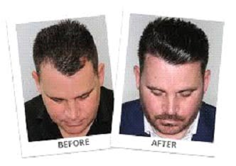 The Ultimate Guide to Hair Transplant in Mexico City