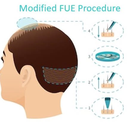 Why should one opt for a Hair transplant in Mumbai?