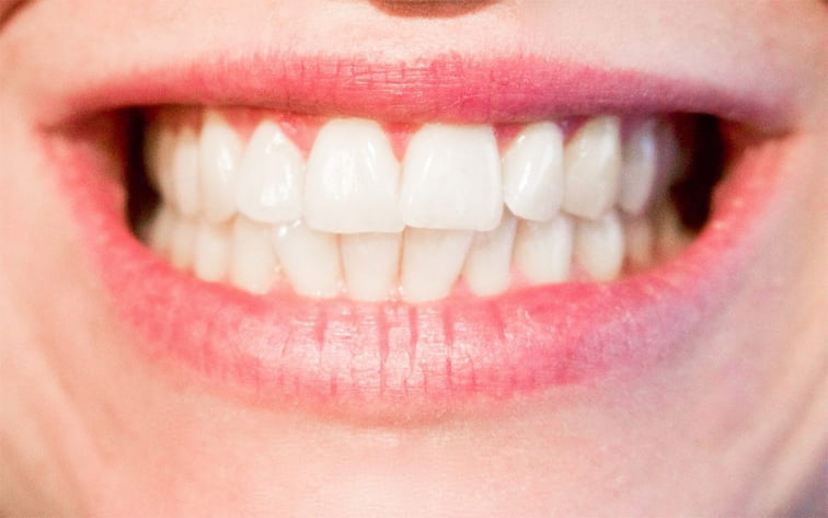 What Is Good Dental Care?