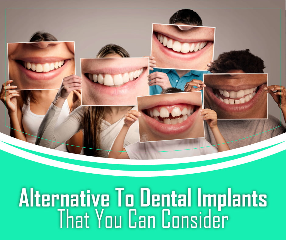 Alternative To Dental Implants That You Can Consider