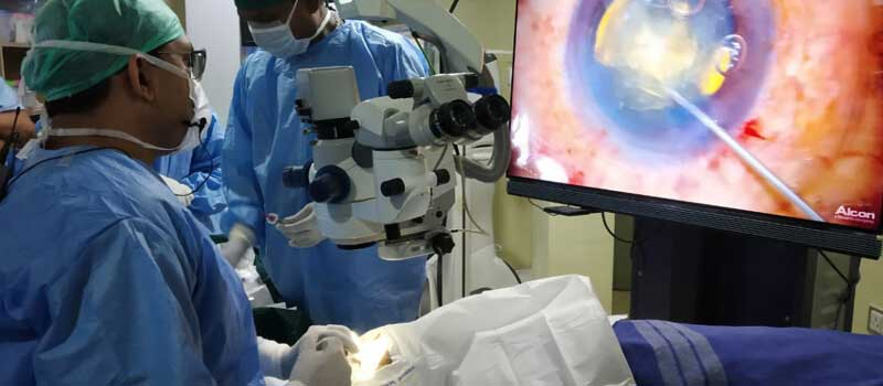 Telling Signs that it Might be Time for Cataract Surgery